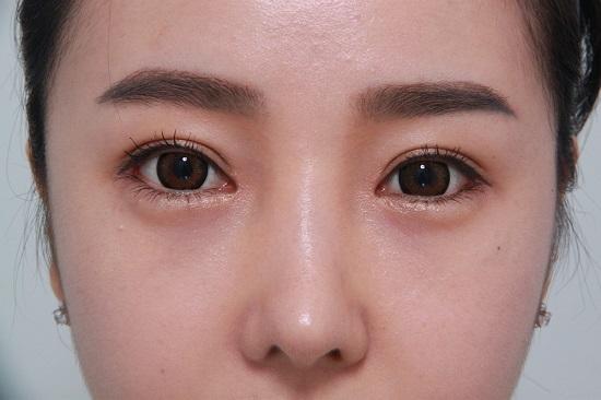 Bấm mí mắt Hàn Quốc giữ được bao lâu